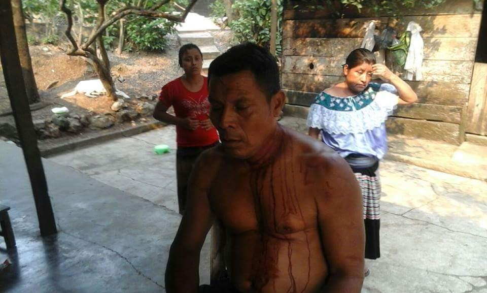 Ejido Bachajón denuncia la agresión a uno de sus integrantes